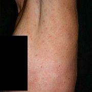 Pitiriasis rosada bajo el brazo
