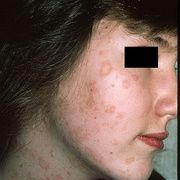 Pitiriasis rosada en la cara