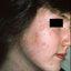 1. Pitiriasis rosada en la cara foto