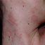 4. Pitiriasis rosada en la cara foto
