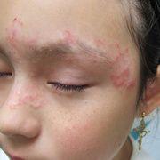 Pitiriasis rosada en la cabeza