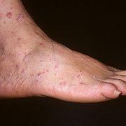 Liquen plano rojo en las piernas