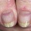 1. Liquen plano rojo en las uñas foto