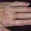 6. Liquen plano rojo en las uñas foto