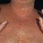 10. Pitiriasis versicolor en el cuello foto