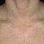 12. Pitiriasis versicolor en el cuello foto