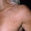13. Pitiriasis versicolor en el cuello foto