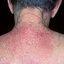 15. Pitiriasis versicolor en el cuello foto