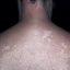 20. Pitiriasis versicolor en el cuello foto