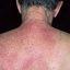 22. Pitiriasis versicolor en el cuello foto