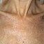 24. Pitiriasis versicolor en el cuello foto