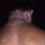 28. Pitiriasis versicolor en el cuello foto
