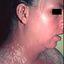 3. Pitiriasis versicolor en el cuello foto