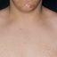 35. Pitiriasis versicolor en el cuello foto