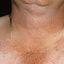 38. Pitiriasis versicolor en el cuello foto