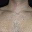 39. Pitiriasis versicolor en el cuello foto