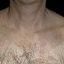 41. Pitiriasis versicolor en el cuello foto
