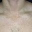 48. Pitiriasis versicolor en el cuello foto
