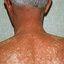 9. Pitiriasis versicolor en el cuello foto