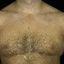 102. Pitiriasis versicolor en el cuerpo foto