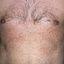 105. Pitiriasis versicolor en el cuerpo foto