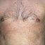 108. Pitiriasis versicolor en el cuerpo foto