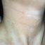 109. Pitiriasis versicolor en el cuerpo foto