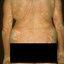11. Pitiriasis versicolor en el cuerpo foto