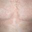 128. Pitiriasis versicolor en el cuerpo foto