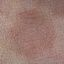 137. Pitiriasis versicolor en el cuerpo foto