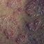 141. Pitiriasis versicolor en el cuerpo foto