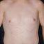 142. Pitiriasis versicolor en el cuerpo foto