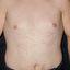 144. Pitiriasis versicolor en el cuerpo foto