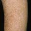 158. Pitiriasis versicolor en el cuerpo foto