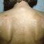 167. Pitiriasis versicolor en el cuerpo foto