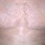 168. Pitiriasis versicolor en el cuerpo foto