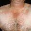 174. Pitiriasis versicolor en el cuerpo foto