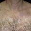177. Pitiriasis versicolor en el cuerpo foto