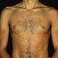 181. Pitiriasis versicolor en el cuerpo foto