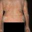 19. Pitiriasis versicolor en el cuerpo foto
