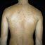 192. Pitiriasis versicolor en el cuerpo foto