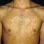 198. Pitiriasis versicolor en el cuerpo foto