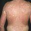 2. Pitiriasis versicolor en el cuerpo foto