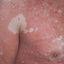 20. Pitiriasis versicolor en el cuerpo foto