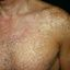208. Pitiriasis versicolor en el cuerpo foto