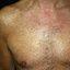 209. Pitiriasis versicolor en el cuerpo foto