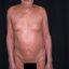 21. Pitiriasis versicolor en el cuerpo foto