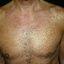 210. Pitiriasis versicolor en el cuerpo foto