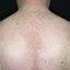 217. Pitiriasis versicolor en el cuerpo foto