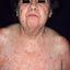 22. Pitiriasis versicolor en el cuerpo foto